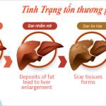 Bệnh gan nhiễm mỡ và cách điều trị
