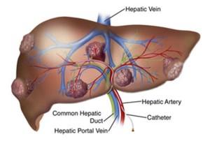liver-tumors