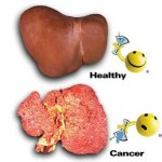Bệnh viêm gan siêu vi B