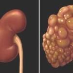 Bệnh nang thận ở thai nhi