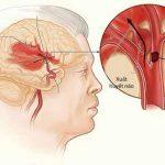 Cao huyết áp dẫn đến tai biến