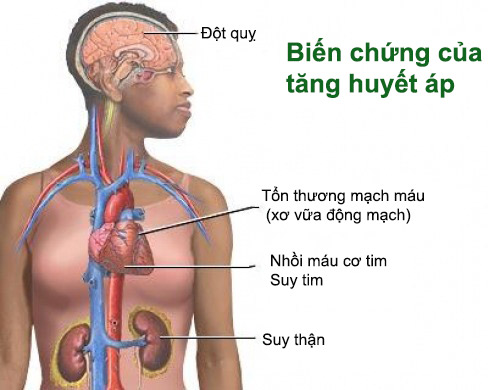 97.cao-huyet-ap-vo-can-nguyen-phat