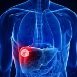 U gan và ung thư gan